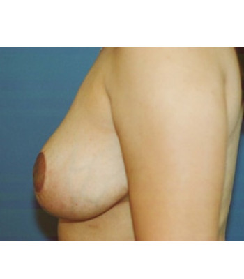 Breast Reduction – Case 1